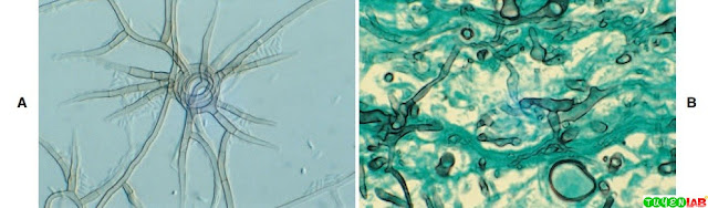 A, Phaeoacremonium sp. displaying septate hyphae. B, Zygomycetous hyphae in tissue appears sparsely septate.