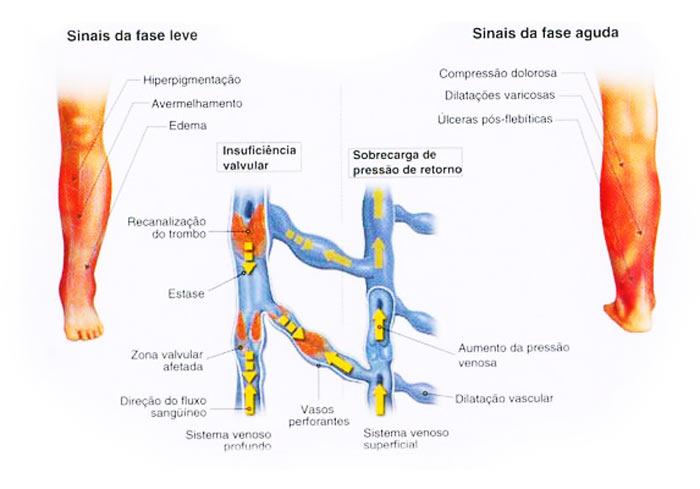Venosa sinais de estase úlcera de