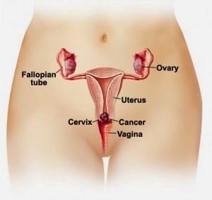 pengobatan herbal kanker rahim