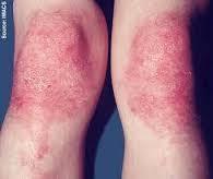 obat eksim pada kering pada kaki dan tangan ampuh