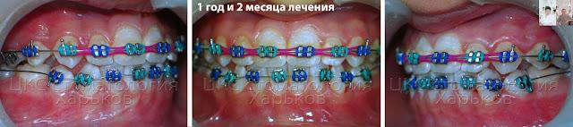 Ранее ортодонтическое лечение, второй год лечения