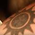 Πώς αφαιρείς ένα ανεπιθύμητο τατουάζ με τη χρήση λέιζερ (video)