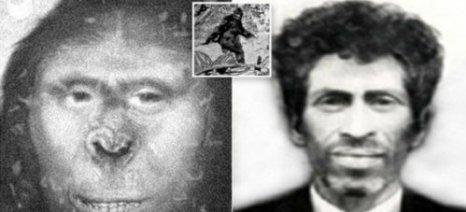 Ζάνα: Η γυναίκα που έζησε τον 19ο αιώνα στον Καύκασο και ήταν μισός άνθρωπος μισός πίθηκος!