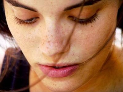 Cara Menghilangkan Flek Hitam Di Wajah Secara Permanen