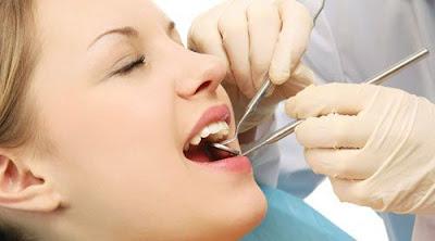 cạo vôi răng mất thời gian bao lâu -4