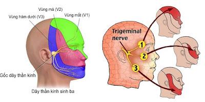 Dấu hiệu của người bị đau dây thần kinh sinh ba
