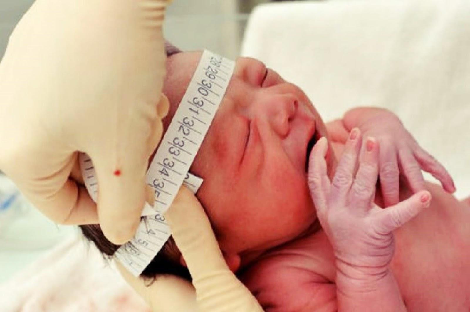 A tecnologia que ajudará bebês com microcefalia