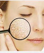 Cara Menghilangkan jerawat pada kulit kering