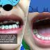 'Itulah doktor, saya ingat nanti cuti bawa datang ke sini nak cabut semua gigi dia' - Doktor terkejut semua gigi kanak-kanak ini rosak
