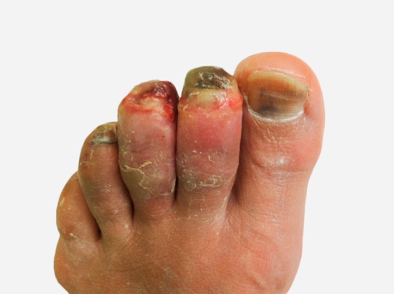 como curar los hongos en los pies con vinagre