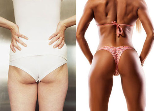 How To Lose Thigh Fat - Exercises To Make Your Feet Slimmer  Best Tips