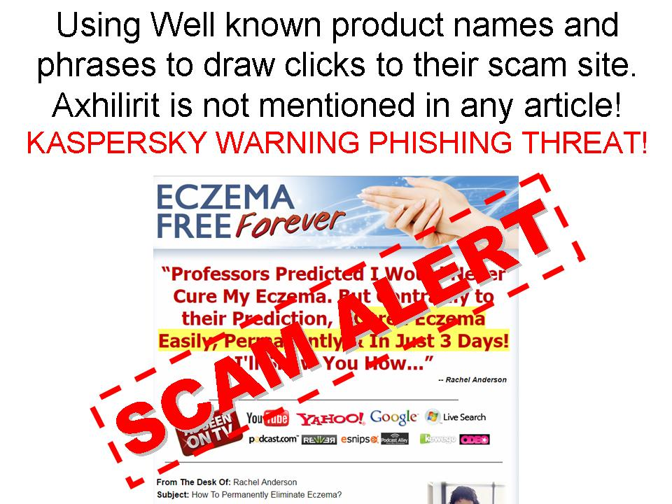 Eczema SCAMS using our Great Axhilirit Eczema Name
