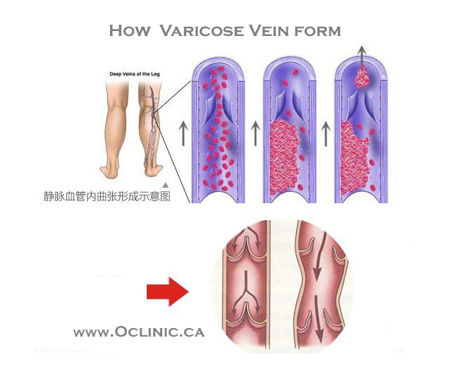 acupuncture for varicose veins