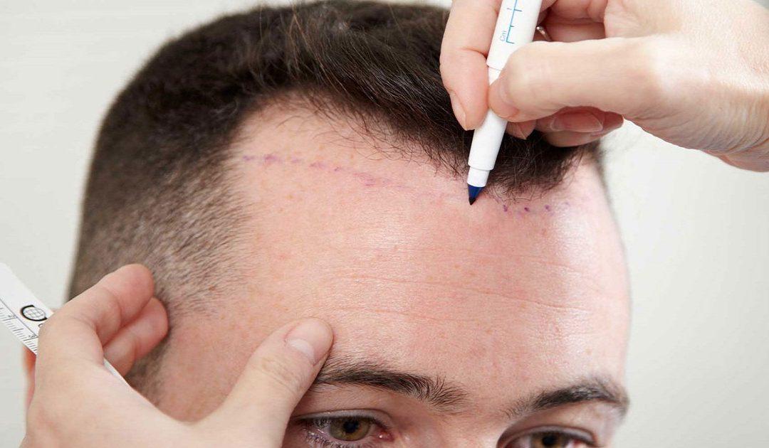وفاة رجل خلال عملية زراعة شعر.. وخبراء يكشفون السبب