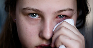 Waspada, 4 Gangguan Kesehatan ini Sering Muncul di Musim Kemarau.