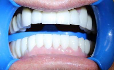 nha khoa trồng răng sứ tốt nhất