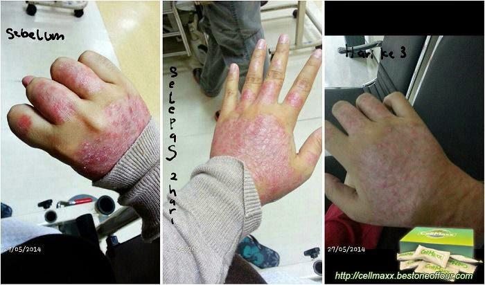 testimoni cellmaxx, ubat strok dengan cellmaxx, ubat eczema dengan cellmaxx, testimoni kanser dengan cellmaxx, testimoni pelbagai penyakit degeneretif dengan cellmaxx, testimoni cellmaxx