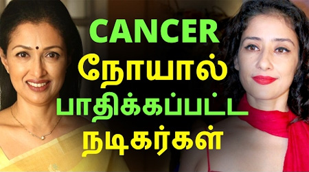 Tamil cinema actor and actress who cured from cancer disease and who died due to cancer disease.