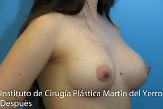mama tuberosa después