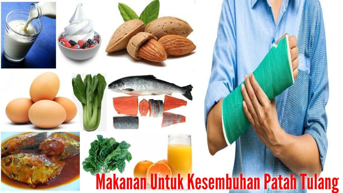 Nutrisi Yang Dibutuhkan Saat Patah Tulang