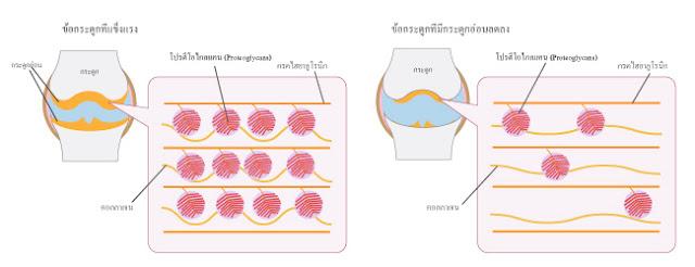 Fracora Liftést Proteoglycan-2