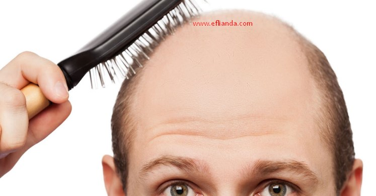 Conditions and Treatment During Hair Loss