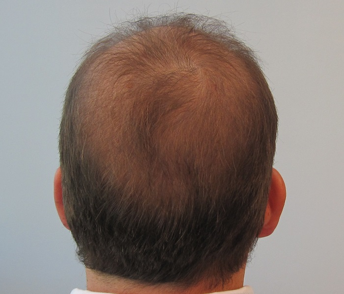 Loss Of Use Coverage >> hair transplant: Case Study#1 -Norwood Class 7
