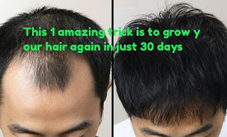 This 1 amazing trick is to grow your hair again in just 30 days