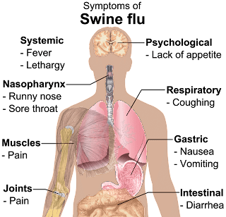 Swine Flu Telangana: 50 Cases Detected