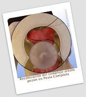 resposicionamiento del complejo areola pezon en un levantamiento de senos