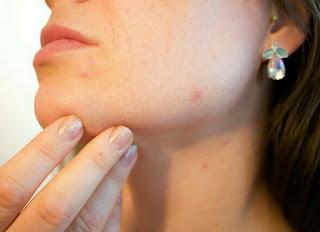 Cara mengatasi jerawat secara alami di wajah