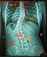 脊椎側彎, 脊椎側彎矯正, 脊椎側彎治療, 脊椎側彎矯正運動, 脊椎側彎矯正成功案例, 脊椎側彎 推薦, 脊椎側彎 台中