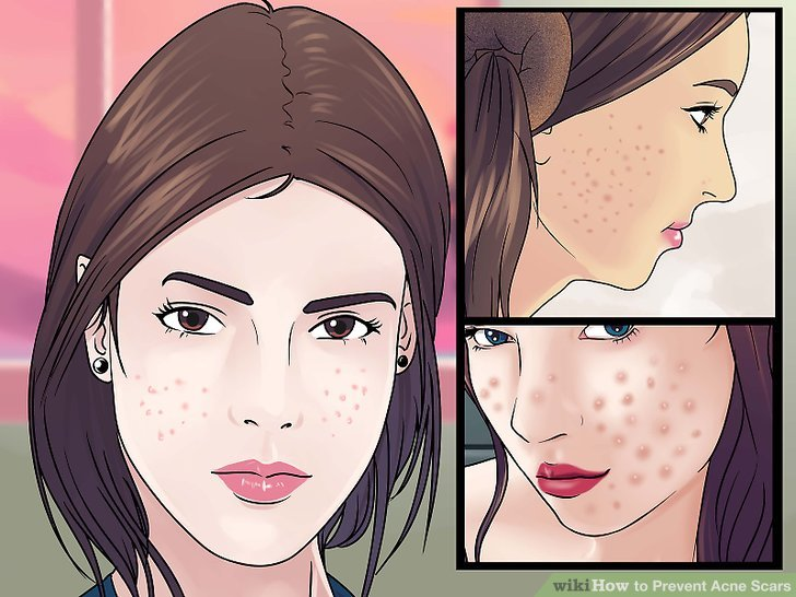 How To Prevent Treat Acne Scars Dubai Abu Dhabi Best Health Beauty Tips Write For Us Anything You Want