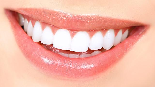 Cara menghilangkan bintik putih pada gigi
