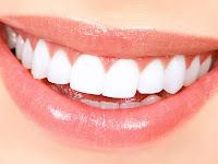 Cara Jitu Menghilangkan Bintik Putih Pada Gigi Dengan Biaya Murah (Terbukti Ampuh)