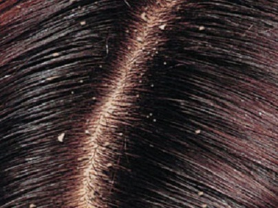 home reme s for dandruff organic living and beauty tips