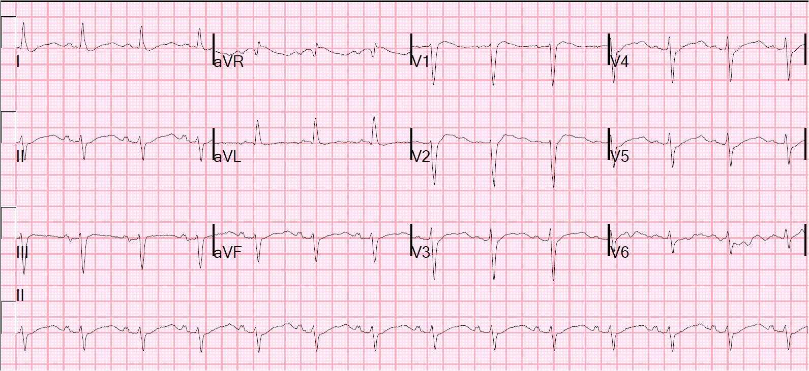 Dr  Smith's ECG Blog: What is the diagnosis? A nearly