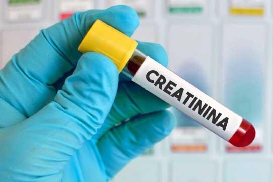 O exame de creatinina é usado para avaliar a função dos rins
