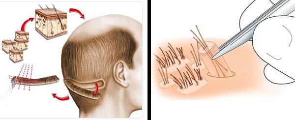 cuanto cuesta un implante de cabello