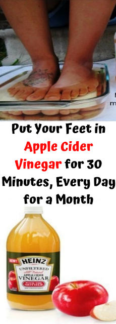 Put Your Feet in Apple Cider Vinegar for 30 Minutes