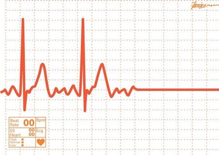 Sudden cardiac death happens when there is an abrupt loss of heart function.