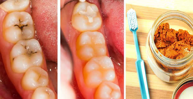 cure tooth cavity naturally