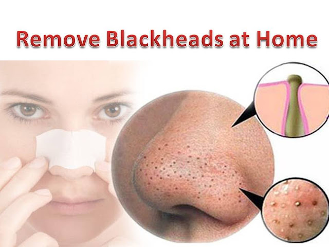 Remove Blackheads At Home, Try These 2 Things