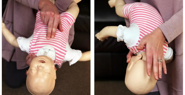 Actions To Take To Save The Life Of A Baby Who Chokes