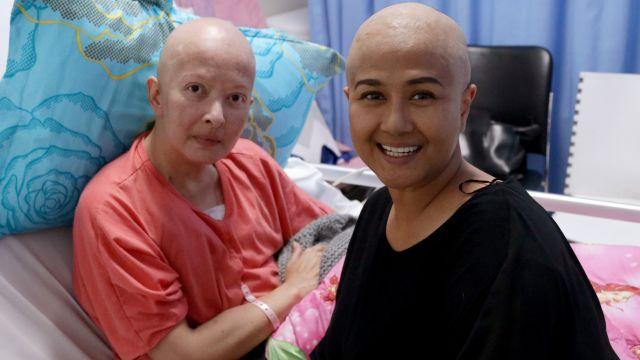 Ini Penyebab Jupe, Yana Zein, Ria Irawan, Rima Melati, dan Renita Terkena Kanker Berat