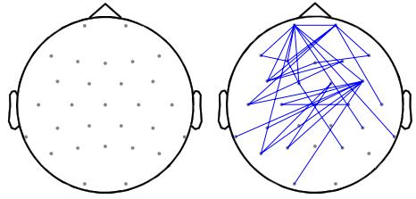 図:バイノウラルビートのθ波