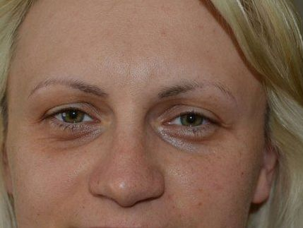 Facial Gymnastics And Eye Bag Transformation Exercise Treatments To Decrease Dark Rings Remove Bags