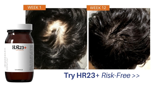 HR23+ hair growth supplement for baldness and thinning hair