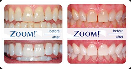 Teeth Whitening Gel