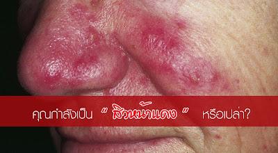 การรักษาสิวหน้าแดง หรือ โรซาเซีย(rosacea)